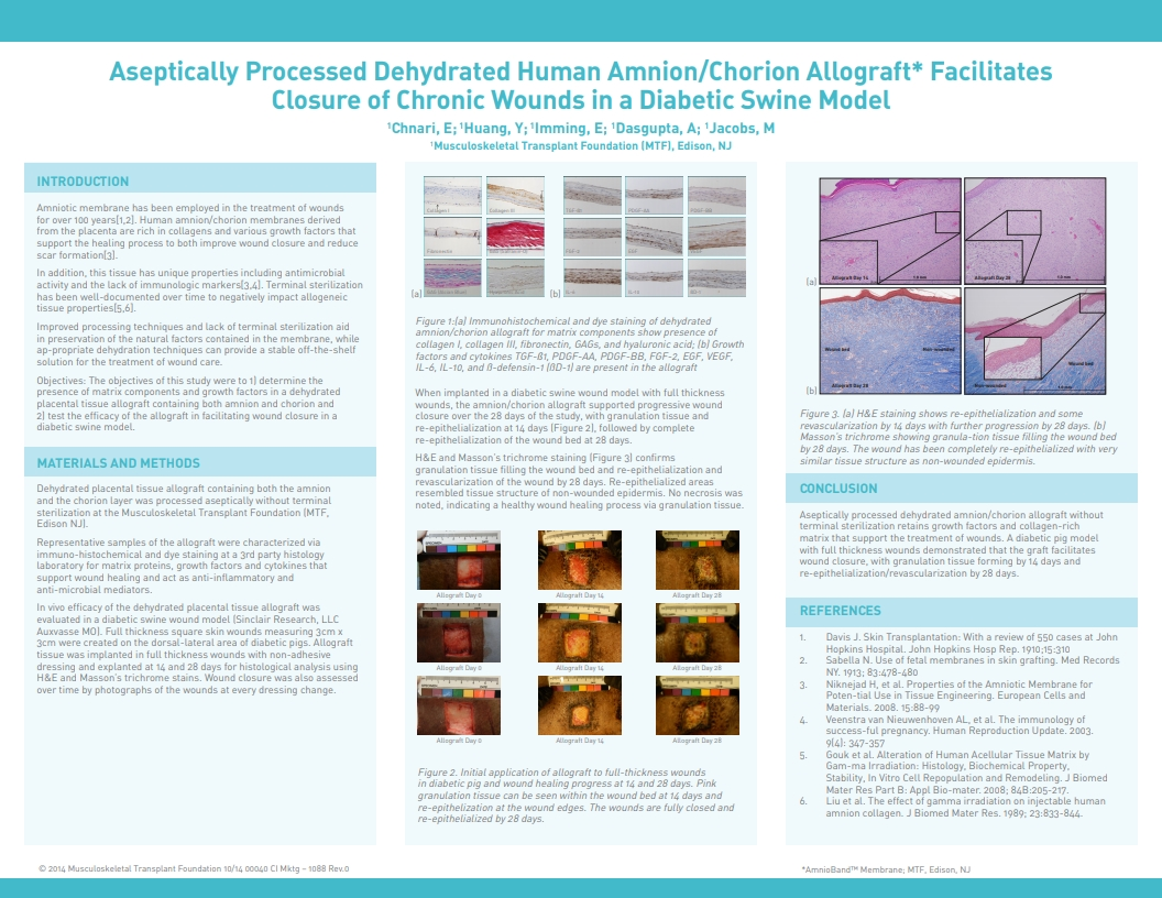 Chnari E, Dasgupta A, Huang YC, Jacobs M. Aseptically Processed Dehydrated Human Amnion/Chorion Allograft Promotes Healing of Chronic Wounds in a Diabetic Swine Model. SAWC 2014 Fall. Las Vegas, NV, USA