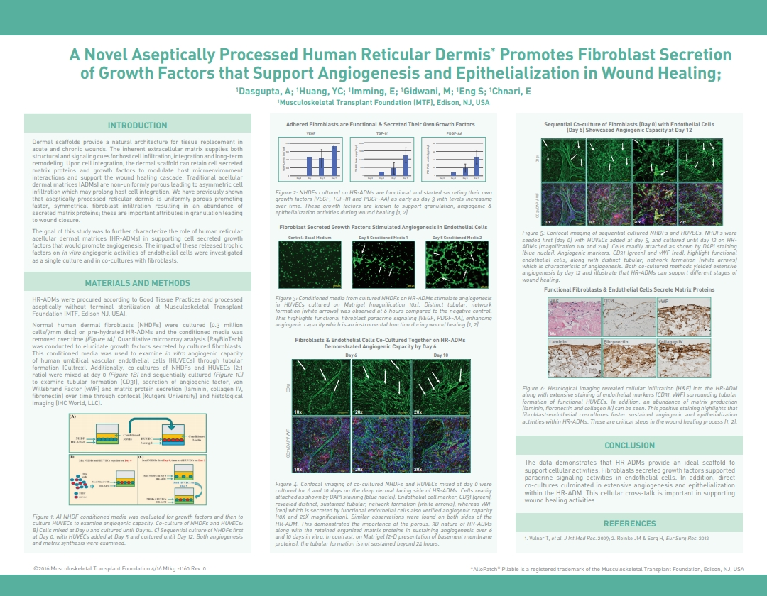 Dasgupta A, Huang YC, Emming I, Gidwani M, Eng S, Chnari E. A Novel Aseptically Processed Human Reticular Dermis Promotes Fibroblast Secretion of Growth Factors that Support Angiogenesis and Epithelialization in Wound Healing. SAWC 2016 Spring. Atlanta, GA, USA
