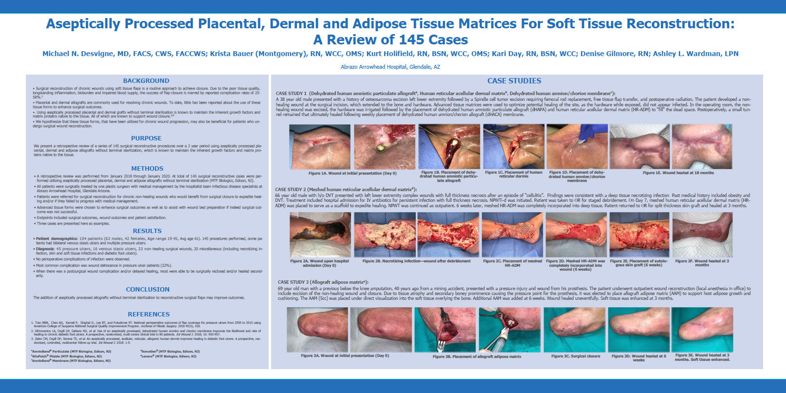 Desvigne M., Bauer K., Holifield K., Day K., Gilmore D., Wardman A. Aseptically Processed Placental, Dermal and Adipose Tissue Matrices For Soft Tissue Reconstruction: A Review of 145 Cases. SAWC 2020 Fall.