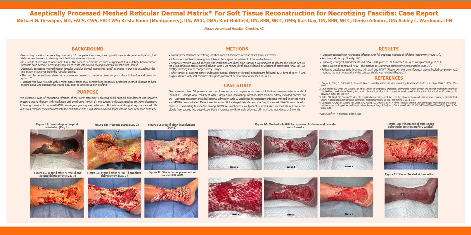 Desvigne M., Bauer K., Holifield K., Day K., Gilmore D., Wardman A. Aseptically Processed Meshed Reticular Dermal Matrix* For Soft Tissue Reconstruction for Necrotizing Fasciitis: Case Report. SAWC 2020 Fall.